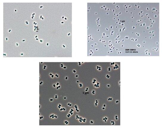 """<p> An ungewöhnlichen Orten fanden Experten die extrem widerstandsfähige Mikrobe Tersicoccus phoenicis: Sie wurde in Räumen in Florida und Französisch-Guayana entdeckt, in denen Raumschiffe zusammengebaut werden. Dort wird besonders intensiv nach Organismen geforscht, um nicht versehentlich """"Verunreinigungen"""" in den Weltraum zu bringen.</p> <p> Quelle: Leibniz-Institute DSMZ/Jet Propulsion Laboratory, California Institute of Technology/SUNY-ESF International Institute for Species Exploration</p>"""