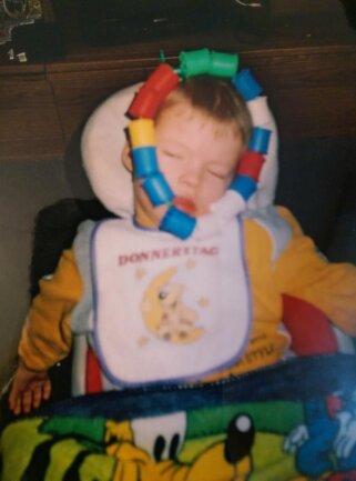 """<p>Mit drei Jahren bekam Alexander eine Ergotherapie. Dazu gehört die bunte """"Kette"""" um sein Gesicht.</p>"""