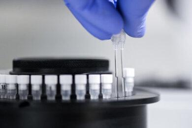 Die Zahl der mit dem Coronavirus infizierten Personen im Landkreis Zwickau ist bis Freitagvormittag auf 267 angestiegen.
