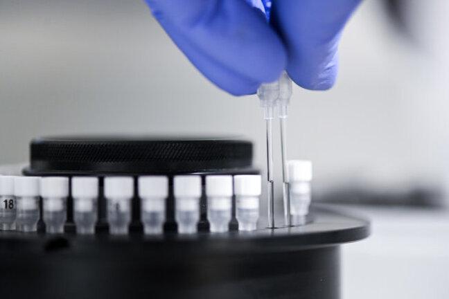 Mutiertes Coronavirus aus Südafrika: Acht weitere Fälle in Leipzig