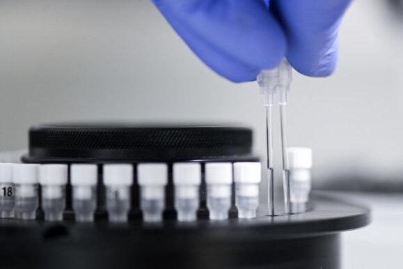 TU Bergakademie Freiberg erforscht Viren-Hemmer aus dem Meer