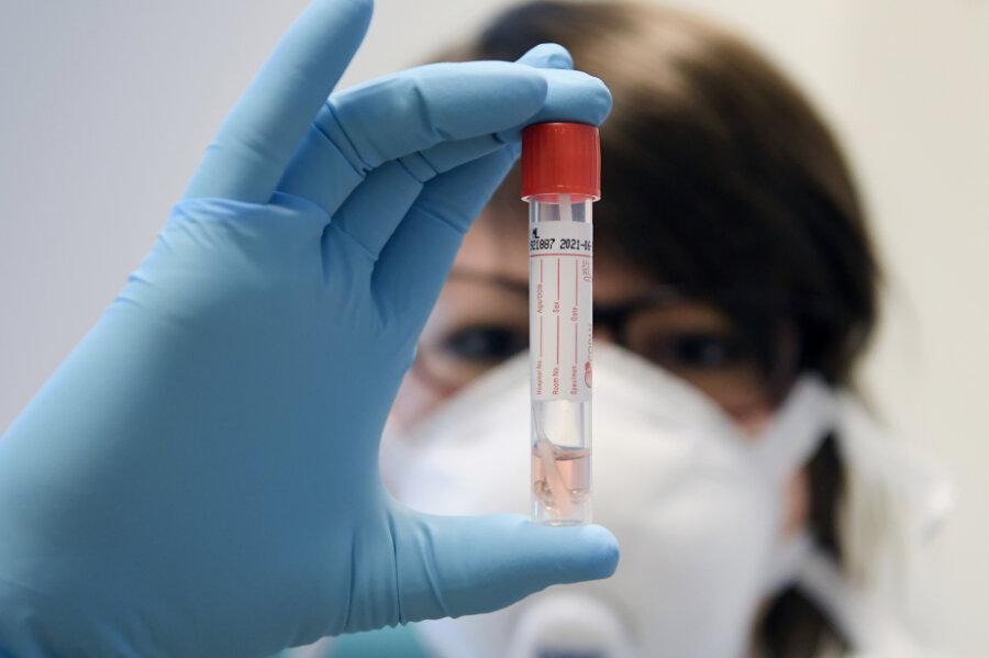 Coronavirus in Sachsen: Weiterer Todesfall