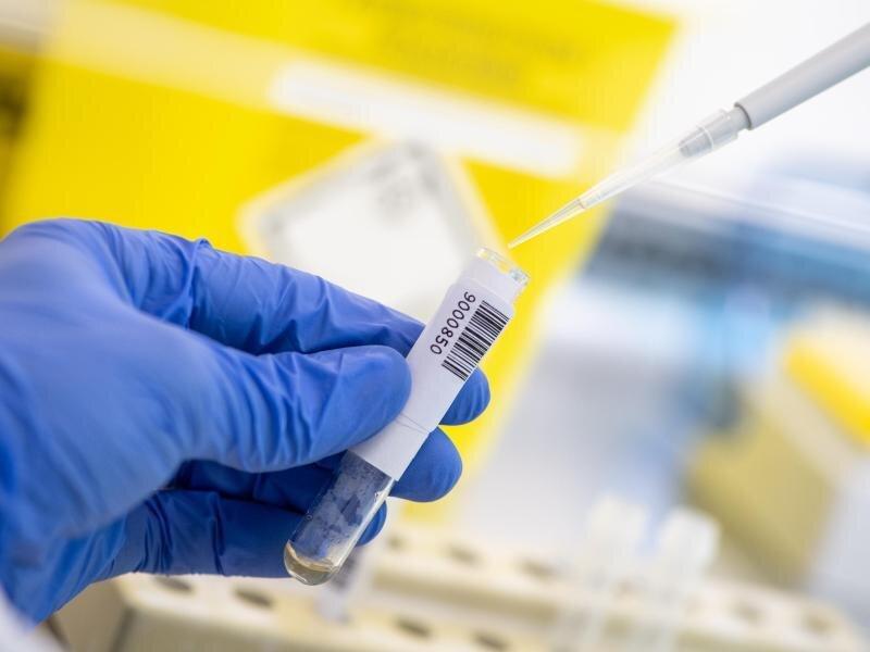 Ein Wissenschaftler nimmt in einem Diagnostiklabor mit einer Pipette abgetrenntes Plasma einer Blutprobe.