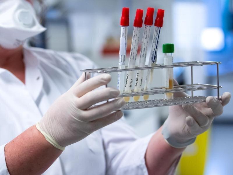 Eine Gesundheitsmitarbeiterin bereitet Tests auf das Coronavirus für die weitere Analyse vor.