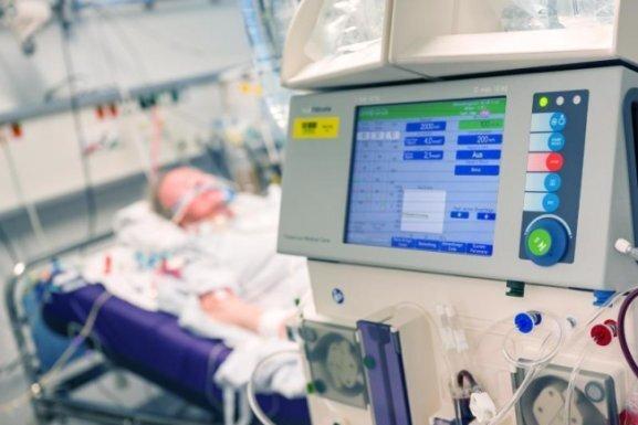 Der Entzündungshemmer Dexamethason könnte die Sterberate bei schweren Covid-19-Verläufen senken. Darauf weisen vorläufige Ergebnisse einer klinischen Studie hin.