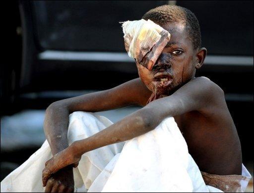Durch das schwere Beben in Haiti sind unzählige Menschen getötet oder verletzt worden. Dieser Junge in Port-au-Prince überlebte die schweren Erdstöße mit Verletzungen. Die Regierung in Port-au-Prince befürchtet bis zu 100.000 Todesopfer.