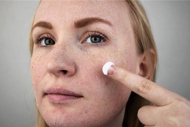 Im Winter ist es am schlimmsten - Neurodermitiker leiden unter extrem trockener Haut. Da hilft nur ständiges Cremen.
