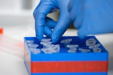 Eine Laborantin führt Untersuchungen zum Coronavirus durch.