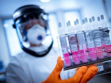 Virologen gehen davon aus, dass der Immunschutz nach der Corona-Infektion ein bis zwei Jahre anhält.