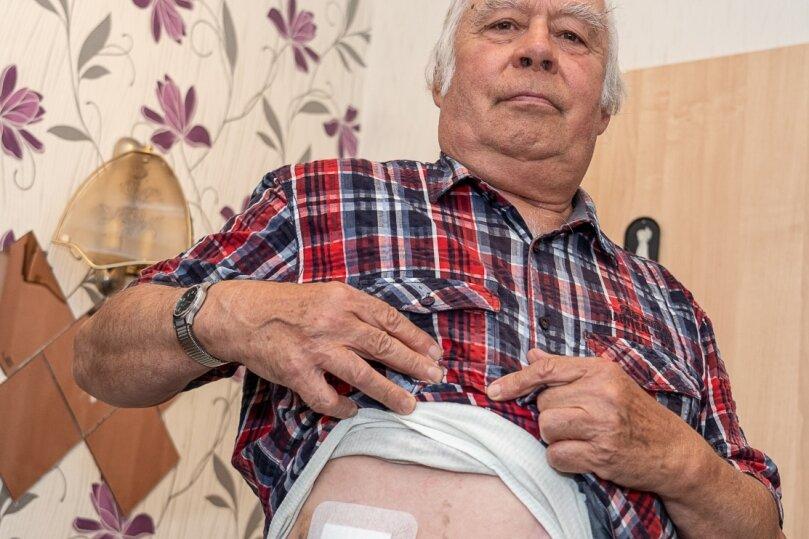 """Hans-Dieter Klitzsch zeigt die Verletzung, die das Projektil verursacht hat. Die Wunde nässt ein bisschen, vor allem ist ein großes Hämatom entstanden. """"Ich hatte Glück"""", sagt der Rodewischer."""