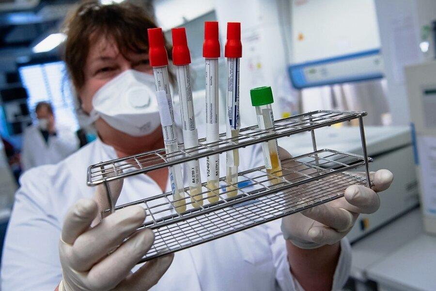 Im Institut für Virologie der Technischen Universität München wird gezielt nach Varianten des Coronavirus gesucht, die auch Geimpften zu schaffen machen können.