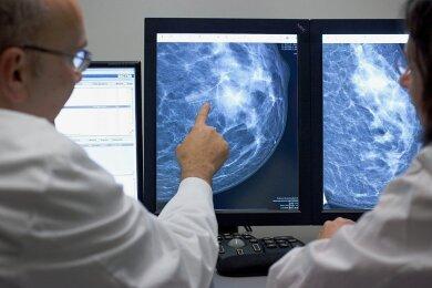 Diese Stelle der Mammografieaufnahme ist auffällig und muss abgeklärt werden.