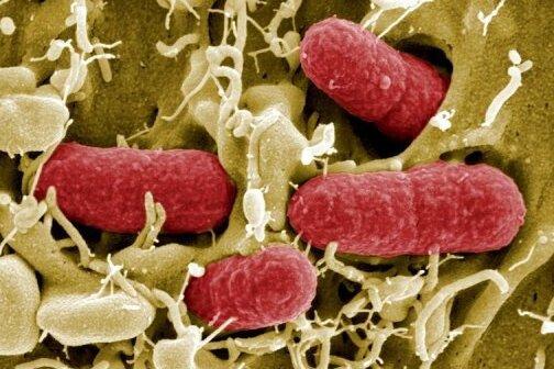 Auch die EU beschäftigt sich bei einer Sondersitzung in Luxemburg mit dem gefährlichen Darmkeim EHEC.