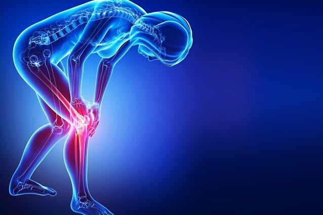 Diagnose abgenutztes Kniegelenk
