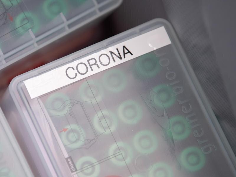 """""""Corona"""" steht im Corona-Testcenter am Stuttgarter Flughafen auf einer Dose mit durchgeführten Tests."""