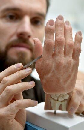 Silikontechniker Alex Stamos arbeitet an einer Handprothese. Die Silikonhand mit 3D-gedrucktem Skelett ist besonders weich.