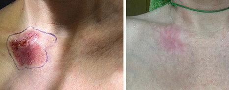 Schlüsselbein vor und 4 Monate nach der Therapie.