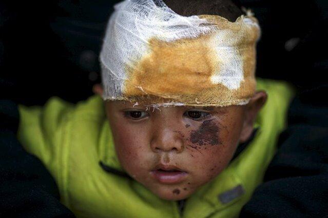 Gezeichnet von der Katastrophe: ein vierjähriger Junge im Krankenhaus von Dhading, westlich von Kathmandu.
