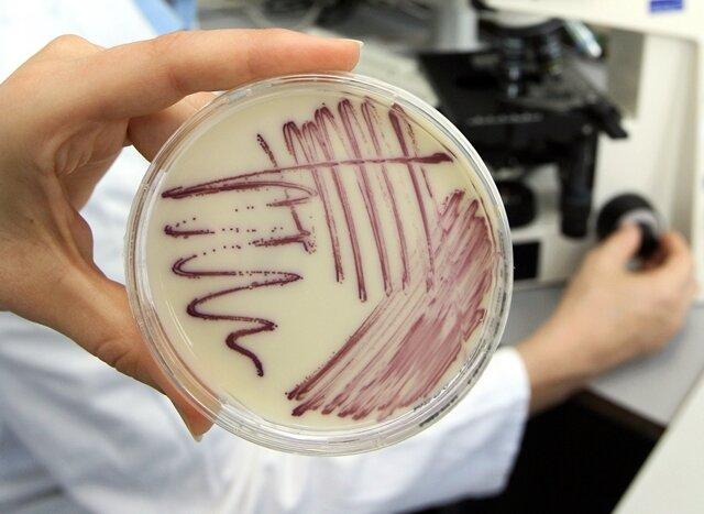 Gefährliche Keime: Amt kann Kliniken keine Zahlen zuordnen