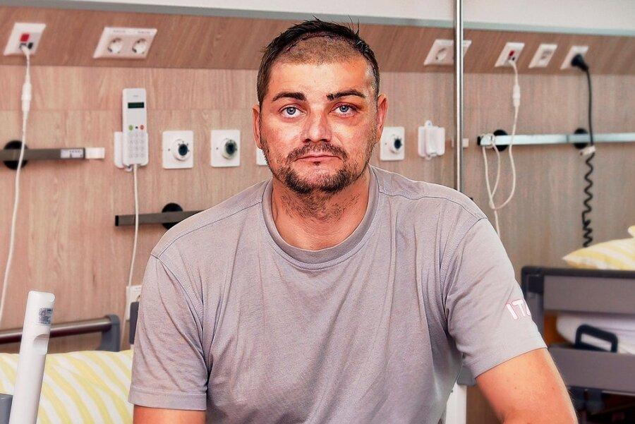 Carsten Kerneker am Tag zwei nach der OP. Der Tumor ist raus aus dem Kopf, dafür mussten teilweise die Haare ab.