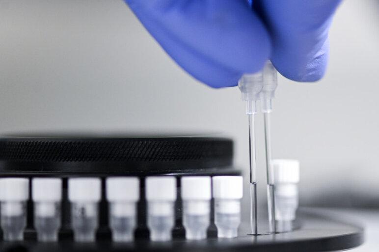 Corona: Zwei weitere Todesfälle nach Infektion