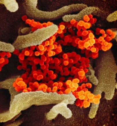 """Der Coronavirus legt das Vogtland lahm. Zwei Fälle waren bis Montagabend für den Landkreis bestätigt. Die Illustration zeigt eine elektronenmikroskopische Virus-Aufnahme des """"U.S. National Institute of Health""""."""
