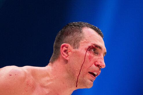 Klitschko nach Totalschaden gegen Fury: «Fortsetzung folgt»